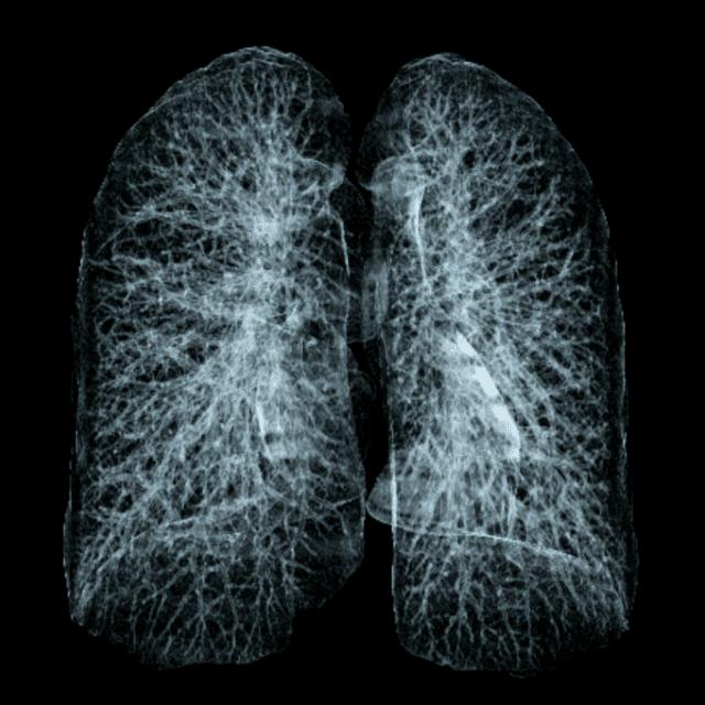 комп'ютерна томографія легень