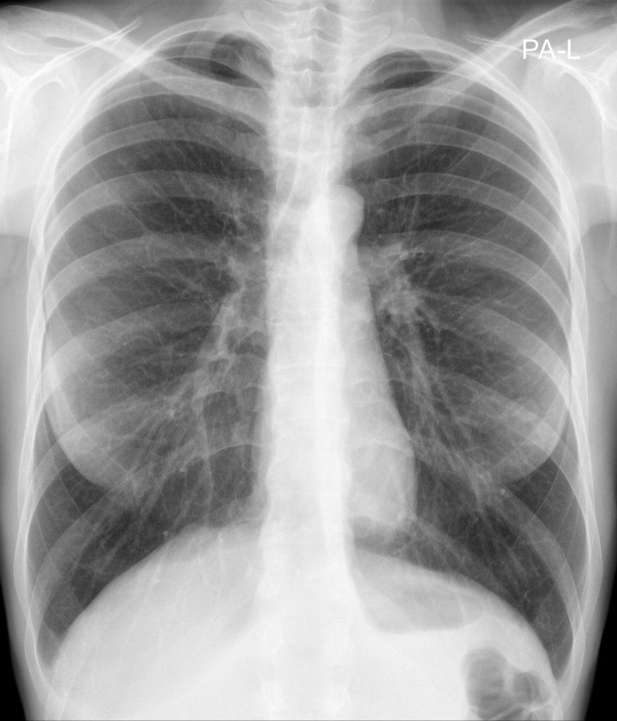 Рентген легень