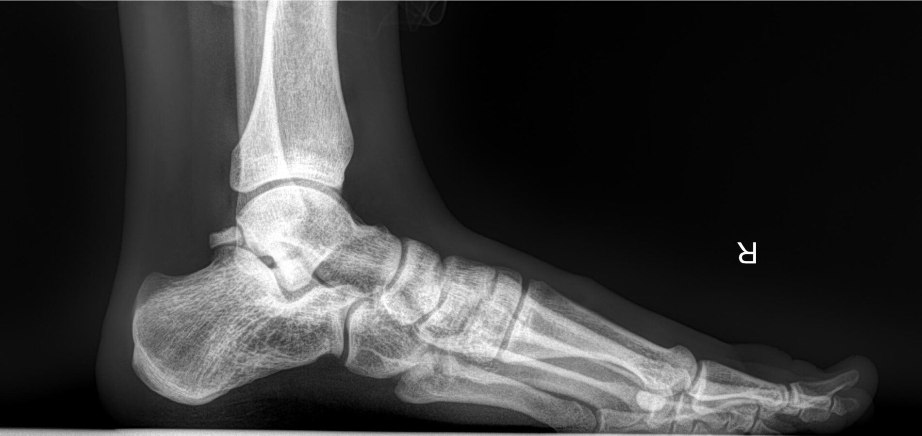 Рентген стопи з навантаженням
